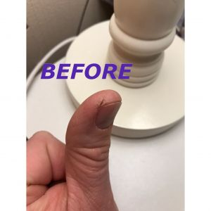 Thumb before Cetraben
